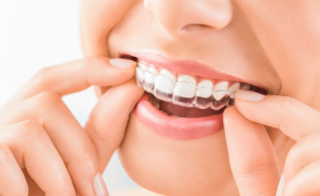 Woman wearing her invisible aligners